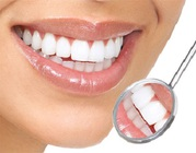 Teeth Whitening Issues and Concerns